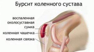 Узи коленного сустава волгоград мрт коленного сустава дешево в москве